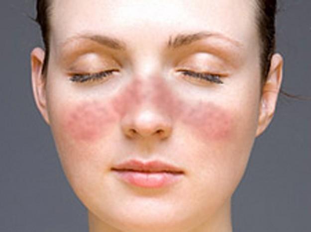 Аллергия на лице: как распознать и чем лечить?