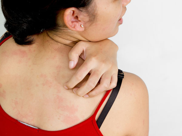 Аллергия на коже: симптомы и лечение
