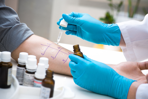 Кожный тест на аллергию поможет узнать ее причины