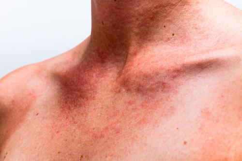 Признаки аллергии на солнце появляются на открытых частях тела