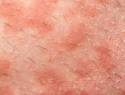 Кожные проявления аллергии на тополь