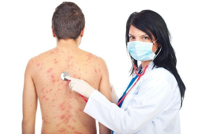 лечение аллергии на металл