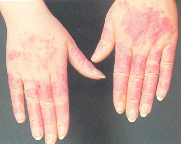 аллергия на холод на руках