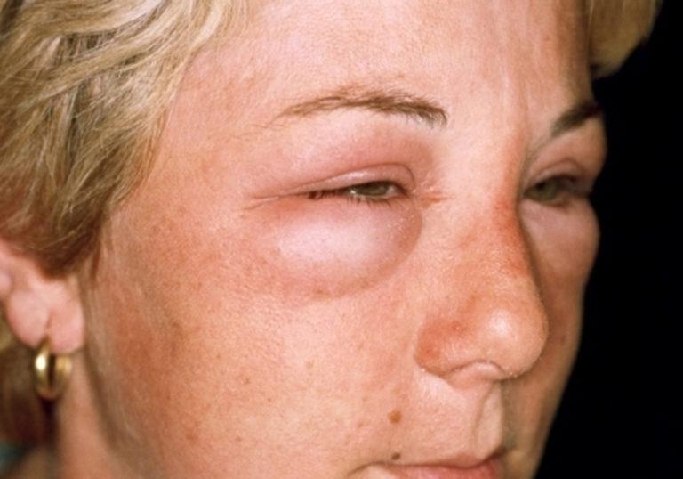 отек квинке при аллергии на холод