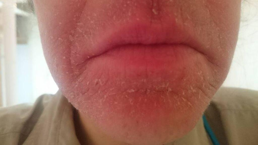 Аллергия на воду из-под крана