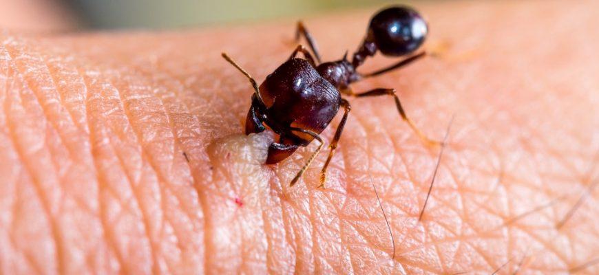 Аллергия на укусы муравьев